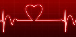 kardiomegalia